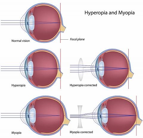 Glassesusa Blog Recent Posts Understanding Hyperopia